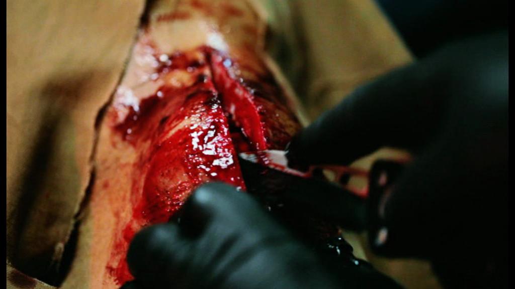 roberts wound